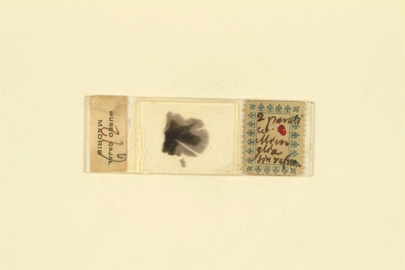 Histological slide_Cajal